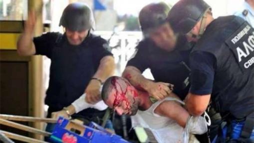 Shkup, policia maqedonase sulmon të riun shqiptar